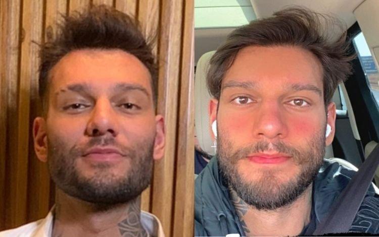 Lucas Lucco faz reversão da harmonização facial e mostra o resultado
